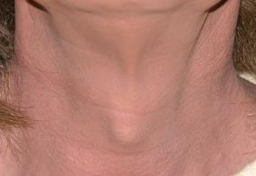 VoiceDoctor.net - Tracheal Reduction 01 - before - frontal view