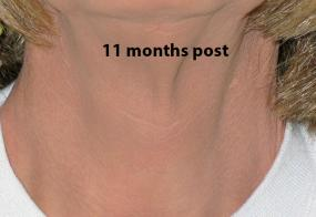 VoiceDoctor.net - Tracheal Reduction 01 - 11 months after - frontal view