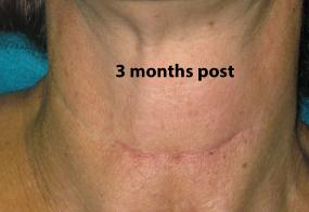VoiceDoctor.net - Denervation-Reinnervation 02 - 3 months after - frontal view