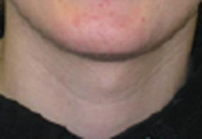 VoiceDoctor.net - Feminization Laryngoplasty 02 - before - frontal view