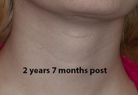 VoiceDoctor.net - Feminization Laryngoplasty 02 - 2 years 7 months after - frontal view