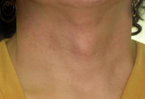 VoiceDoctor.net - Tracheal Reduction 03 - before - frontal view