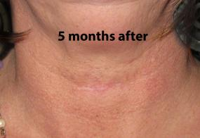 VoiceDoctor.net - Feminization Laryngoplasty 05 - 5 months after - frontal view