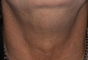 VoiceDoctor.net - Feminization Laryngoplasty 05 - before - frontal view
