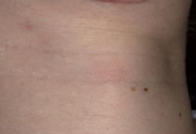 VoiceDoctor.net - Feminization Laryngoplasty 10 - before - frontal view