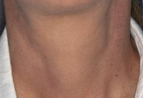 VoiceDoctor.net - Feminization Laryngoplasty 19 - before - frontal view