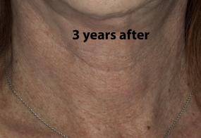 VoiceDoctor.net - Feminization Laryngoplasty 20 - 3 years after - frontal view