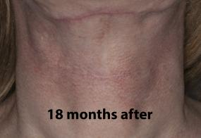 VoiceDoctor.net - Feminization Laryngoplasty 21 - 18 months after - front view
