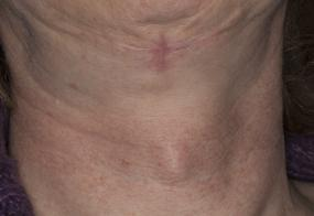 VoiceDoctor.net - Feminization Laryngoplasty 21 - before - frontal view
