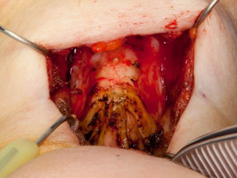 Removing the upper thyroid alae