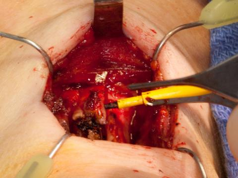 Removing the central thyroid cartilage with two vertical saw incision