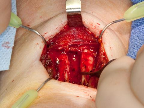 Central opening of the larynx