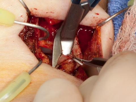 Removing the anterior false vocal cord