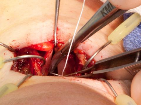Marking the midpoint of the vocal cords with a Gore-Tex suture