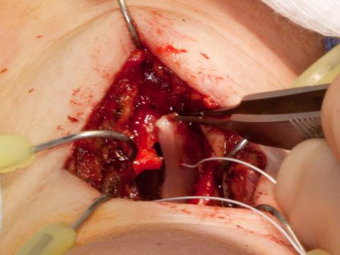 Tensioning the right vocal cord