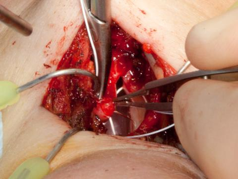 Using Gore-Tex suture to reconstruct the anterior commissure