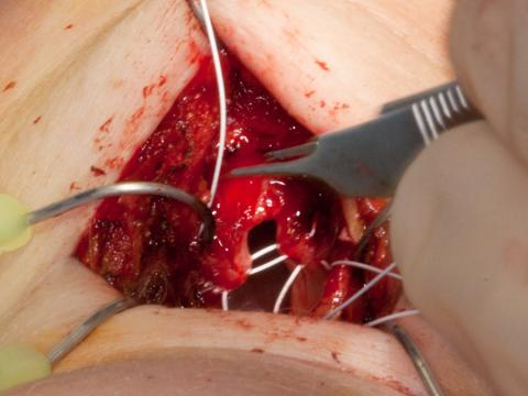 Using Gore-Tex suture to create a new anterior commissure