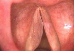 a polyp that extends the length of the vocal cord in a smoker