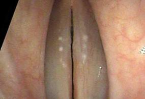 Very small, Central vocal cord thickening, a nodule or a polyp