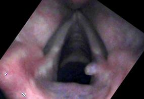 Vocal cord granuloma