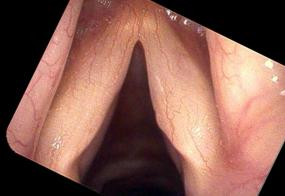 Subtle smoker's polyp