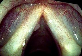 Papilloma on the left vocal cord
