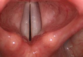 Normal vocal cords during adduction