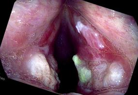 close-up of vocal cord ulcerations after and in a tracheal intubation for 5 days
