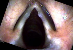 Vocal cord nodules during abduction