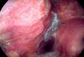 Squamous cell carcinoma of the vocal cords