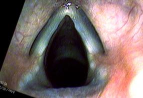 4 months after excision of vocal cord nodules