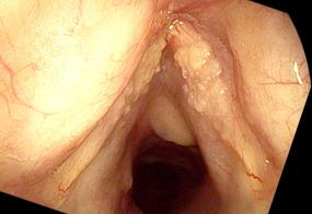 Fungal laryngitis from Flovent