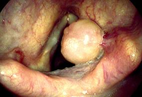 Right arytenoid granuloma