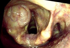 internal laryngocoele