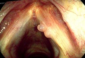 Hemorrhagic vocal cord polyp, bilobed, on the right vocal court