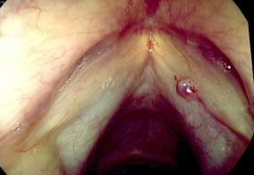 Right hemorrhagic vocal cord polyp