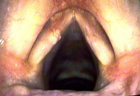 Vocal Cord Cyst Natural Remedies