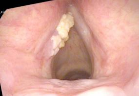 Exophytic leukoplakia of the left vocal cord