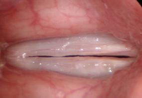 Vocal nodules or vocal calluses viewed during stroboscopy at high pitch