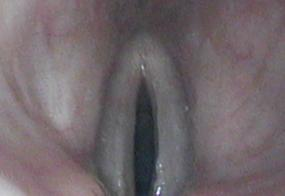 Normal larynx - 25 year old male