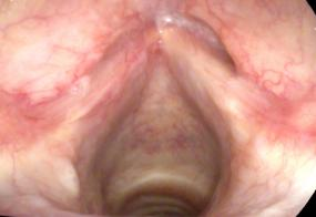Tuberculosis of the larynx
