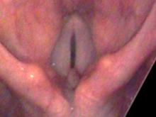 Vocal cord granulomas