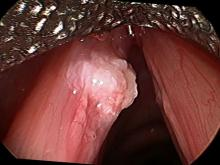 verrucous keratosis lesion viewed during surgery with a 30° endoscope
