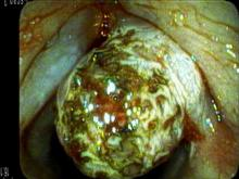 Right smoker's polyp during KTP laser treatment