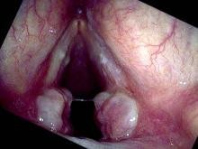 vocal cord granulomas are beginning to mature on both sides and become more pedunculated