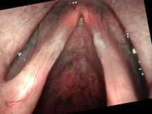 vocal nodules viewed with Olympus ENF-VH and NBI color