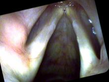 vocal nodules viewed with Pentax VNL-1590 STi and iScan color