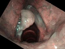 smoker's polyps viewed with Olympus ENF-VH and NBI color