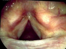 verrucous keratosis lesion six months after excision