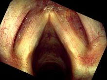 Hemorrhagic vocal cord polyp, healing one week after surgery